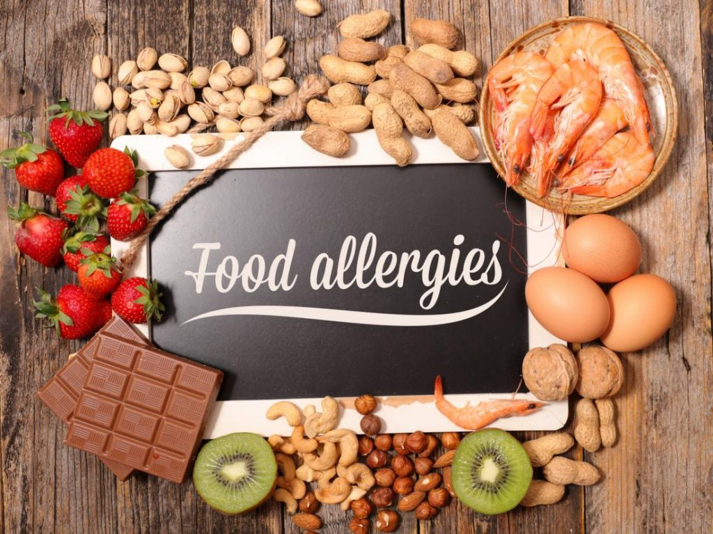 Food Allergies: What You Need To Know