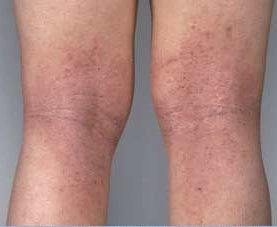 managing eczema with food